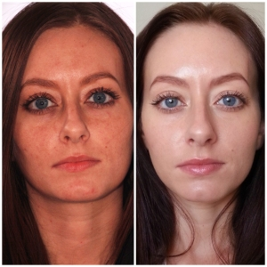 She's Got Bette Davis Eyes...Skin Transformed via Cold Laser